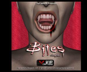 Bites